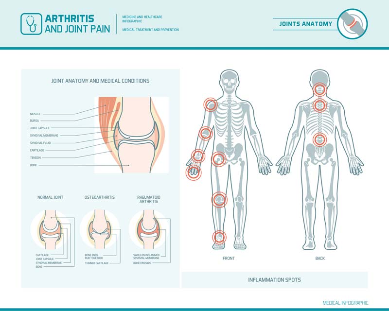 Arthritic joint pain and common areas it occurs