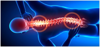 Experienced Slipped Disc Chiropractor in Adelaide